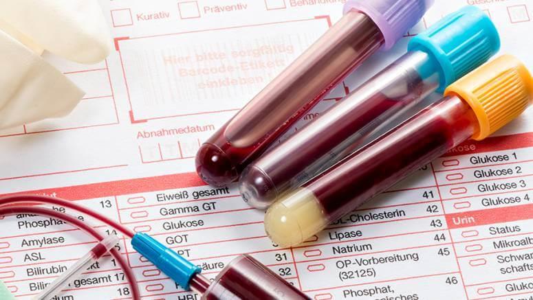 Анализ крови д диаметр